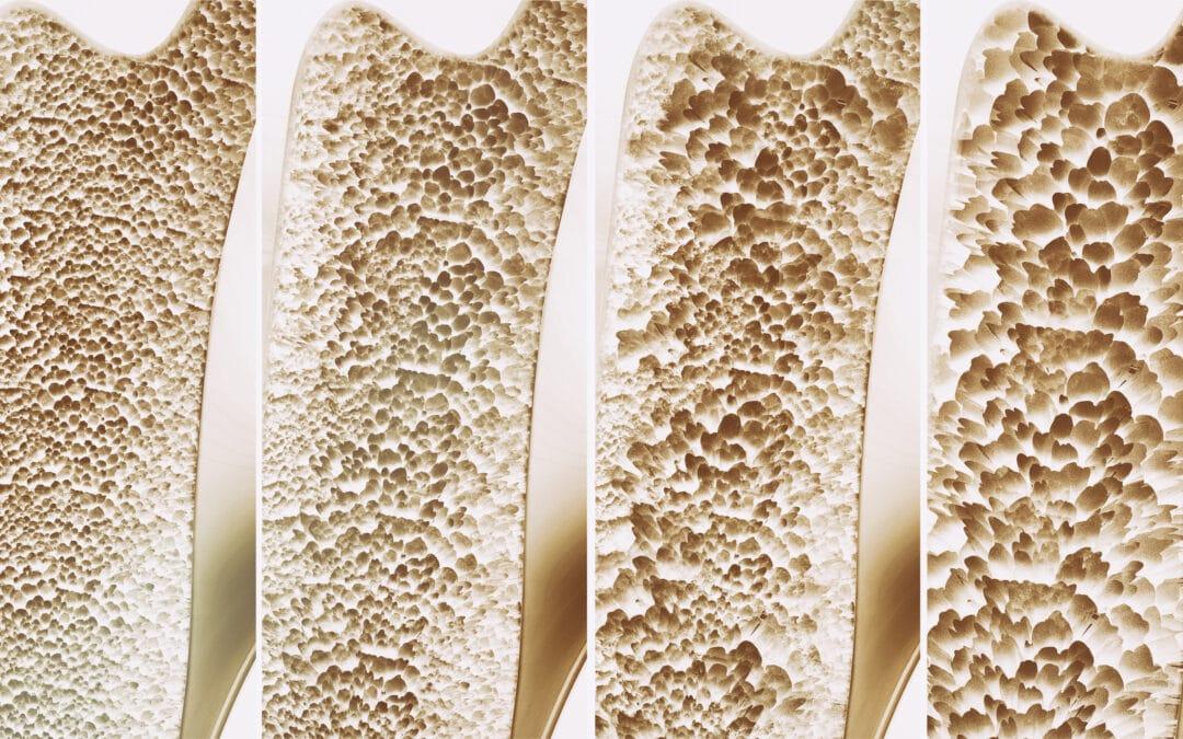 kostenloses LIVE Online Seminar für Endverbraucher – Thema: Vitalstoffe für Knochen und Gelenke